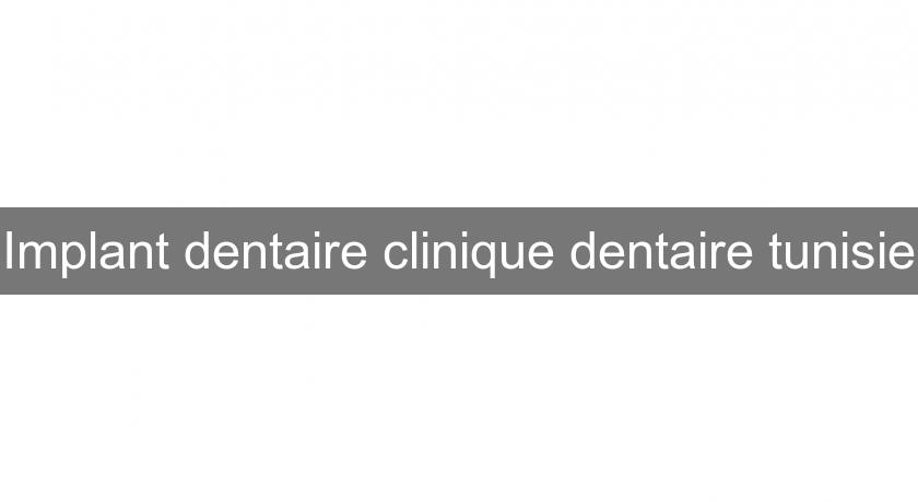 Implant dentaire clinique dentaire tunisie