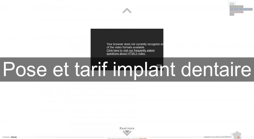 Pose et tarif implant dentaire