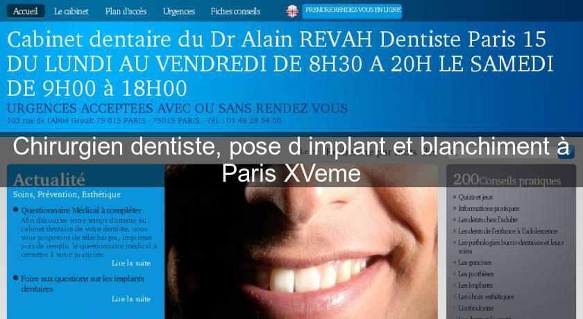 Chirurgien Dentiste Pose D Implant Et Blanchiment A Paris Xveme