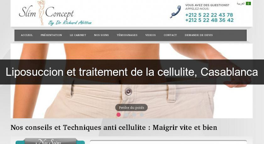 Liposuccion et traitement de la cellulite, Casablanca