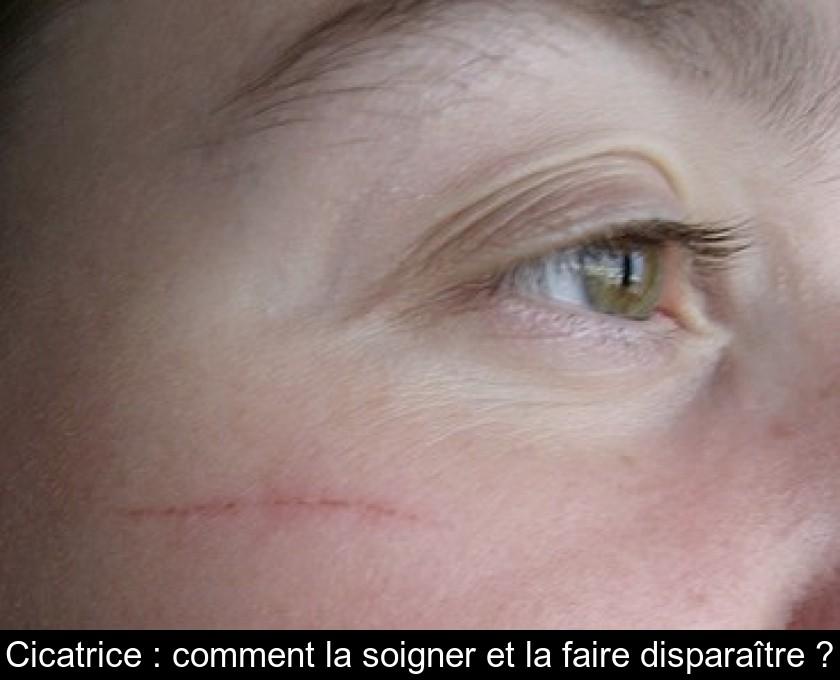 Cicatrice : comment la soigner et la faire disparaître ?