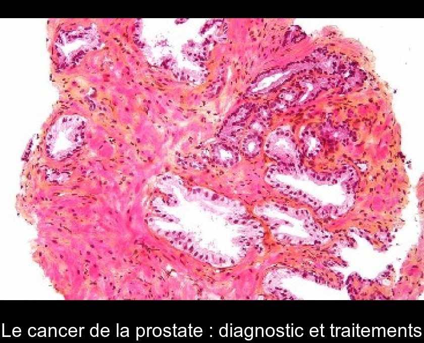 Le cancer de la prostate : diagnostic et traitements